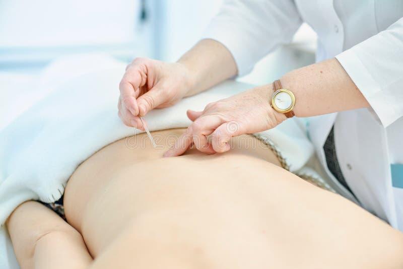 Detalhe macro de mão fêmea usando um tubo da inserção para introduzir uma agulha da acupuntura de Goshin na parte de trás de uma  fotografia de stock royalty free