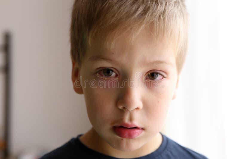Detalj av pojken med röda ögon för bindhinneinflammation arkivfoton