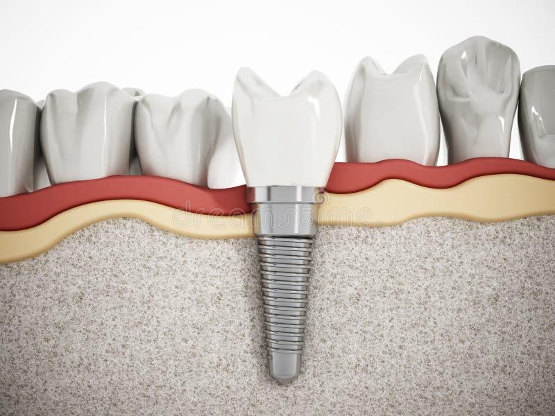 Detalj för tand- implantat vektor illustrationer