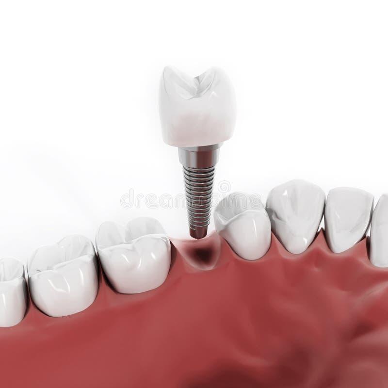 Detalj för tand- implantat royaltyfri illustrationer