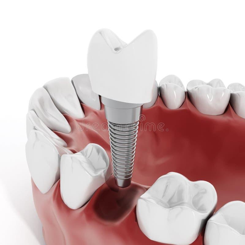 Detalj för tand- implantat stock illustrationer
