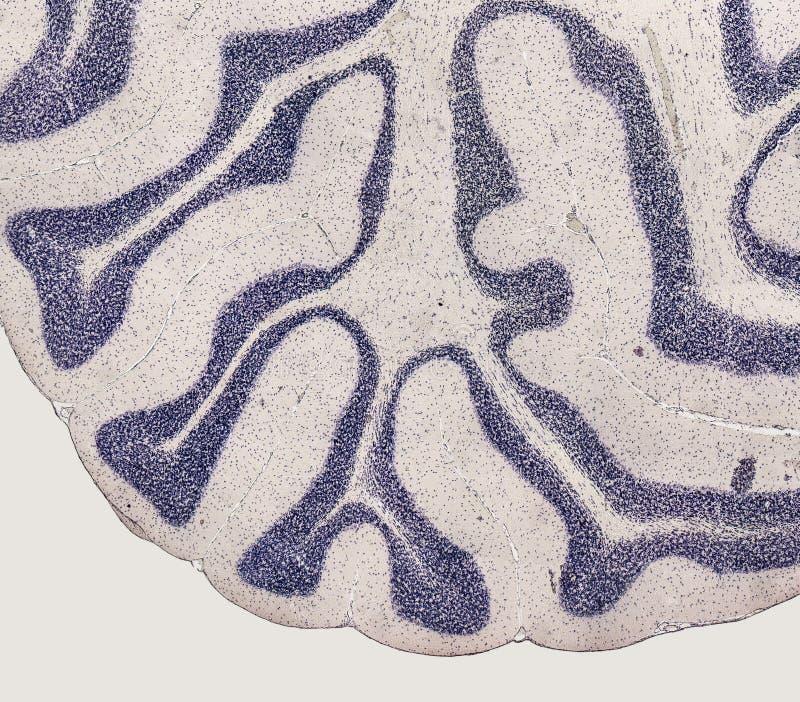 Detalle microscópico del cerebro fotografía de archivo libre de regalías