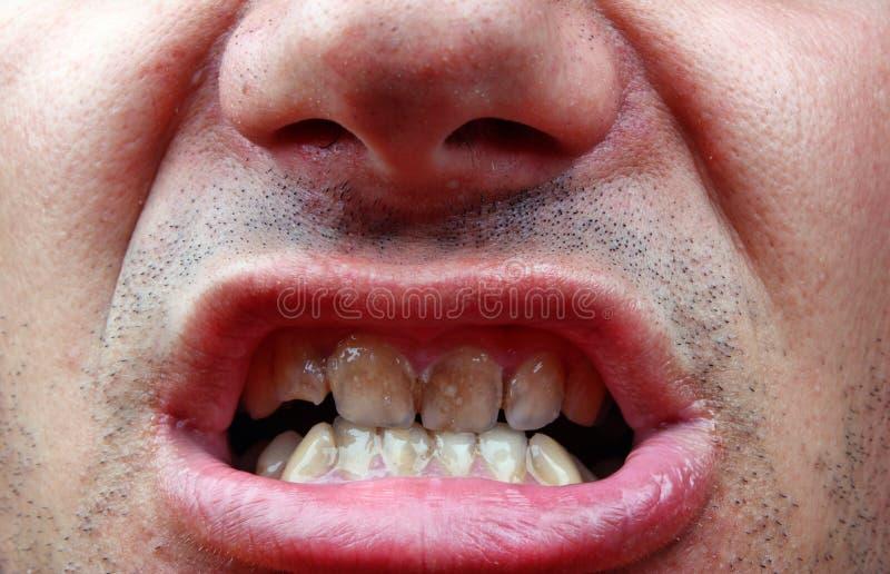 Deterioração do tártaro e de dente fotos de stock royalty free
