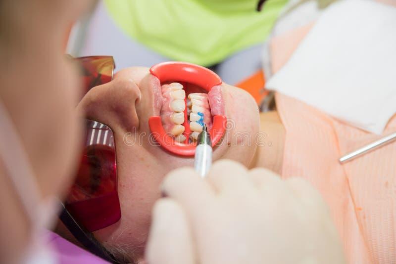 Determine la tonalidad de dientes dentista que visita paciente de sexo femenino para los dientes que blanquea en la clínica, dien fotos de archivo