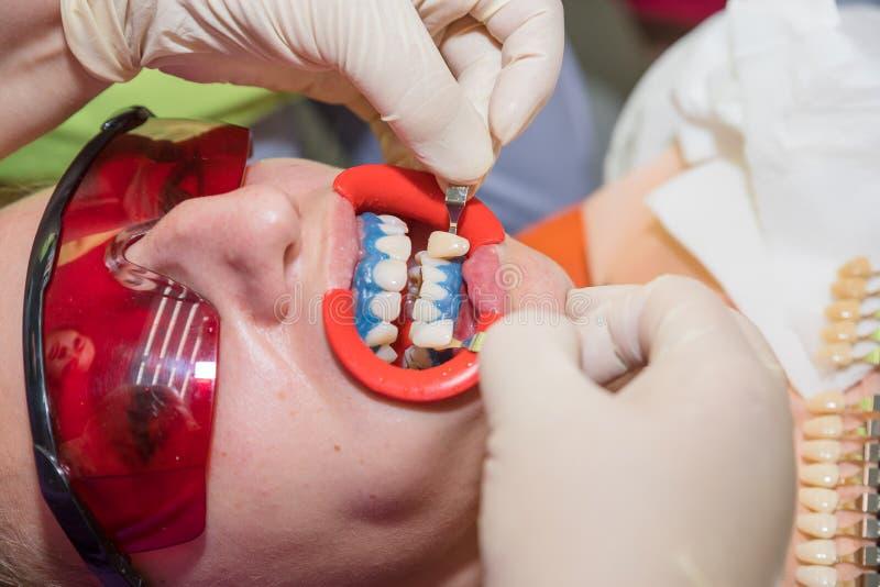 Determine a matiz dos dentes dentista de visita paciente fêmea para os dentes que clarea na clínica, dentes clareando o procedime foto de stock