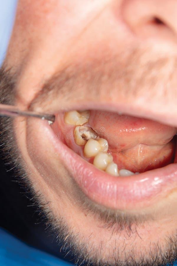 Deux dents latérales de mastication de la mâchoire supérieure après traitement de carie photo libre de droits