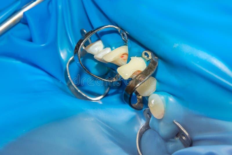 Deux dents latérales de mastication de la mâchoire supérieure après traitement de carie Restauration de la surface de mastication images stock