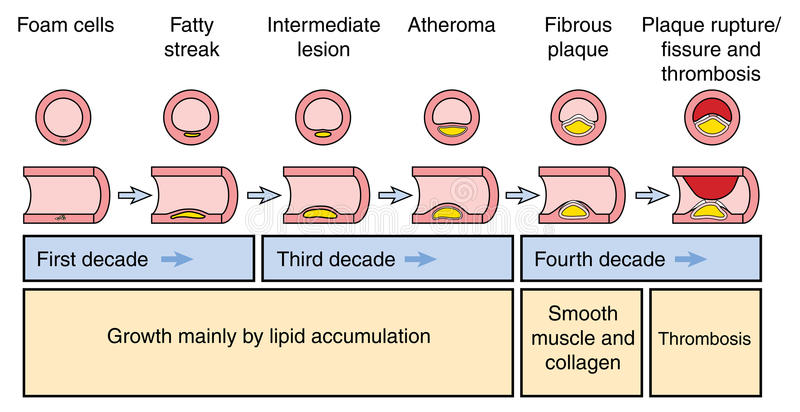 Development of an arterial plaque. Atheromatous plaque formation in an artery, culmination in plaque rupture, fissure and thrombosis vector illustration