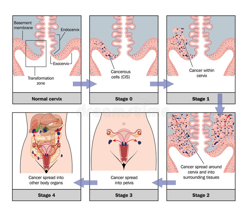 Development of cervical cancer vector illustration