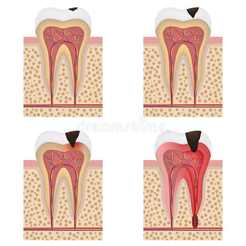 Development of dental caries illustration. Stages of tooth decay illustration. Development of dental caries illustration vector illustration