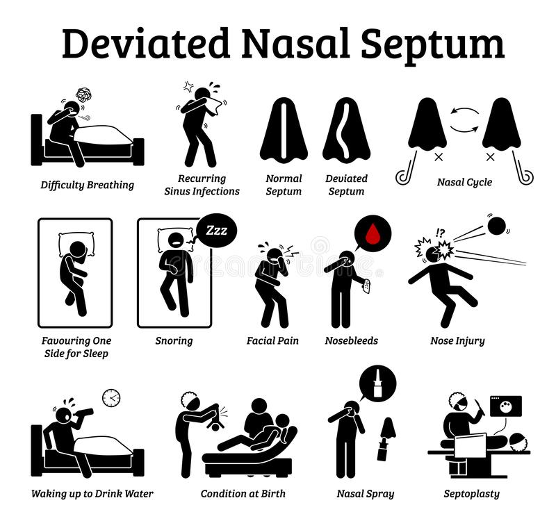 Deviated nasal septum icons. Illustrations depict signs and symptoms of nose problem. Difficulty breathing, sinus infection, snoring, and facial pain royalty free illustration