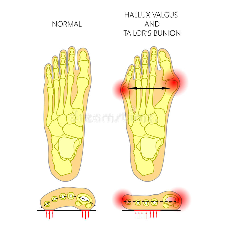 Deviation of the first and the fifth metatarsals transverse flat royalty free illustration