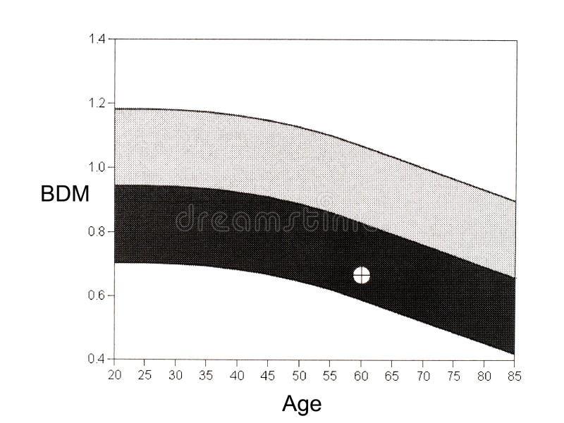 DEXA mineralisk täthetgraf för ben Osteopenia gåva vektor illustrationer
