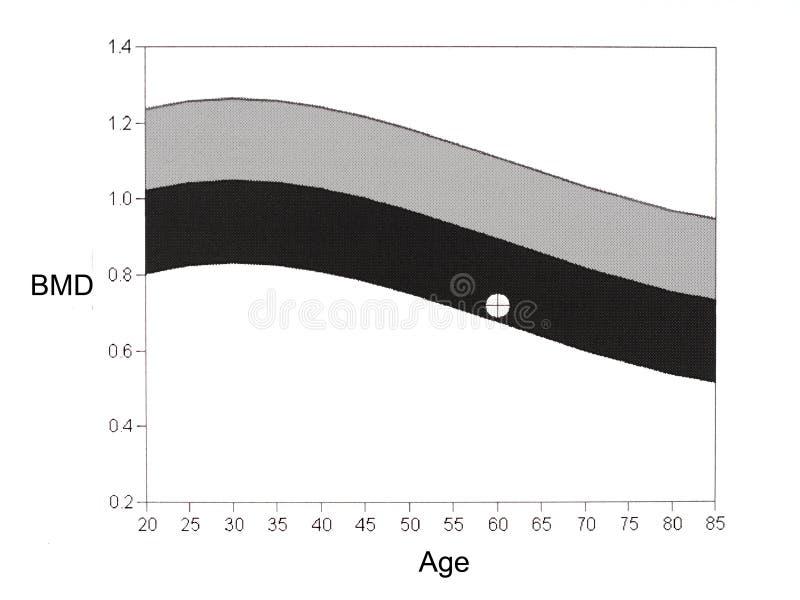 DEXA mineralisk täthetgraf för ben Osteoporosisdiagnos royaltyfri illustrationer