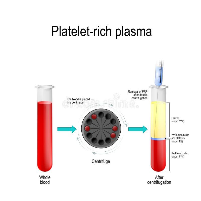 di plasma ricco di piastrina illustrazione vettoriale