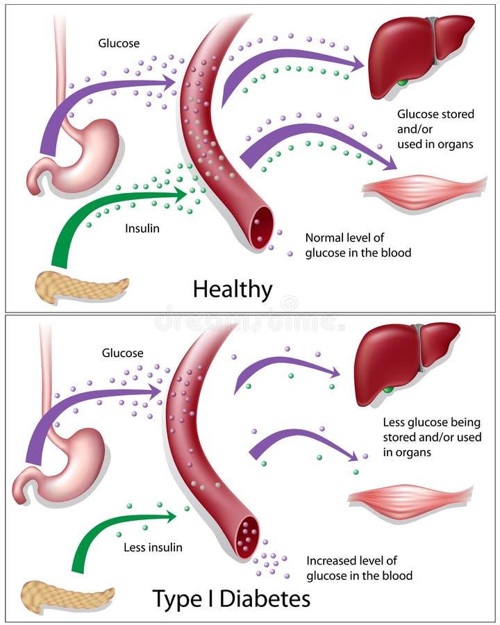 Diabète de type 1 illustration de vecteur