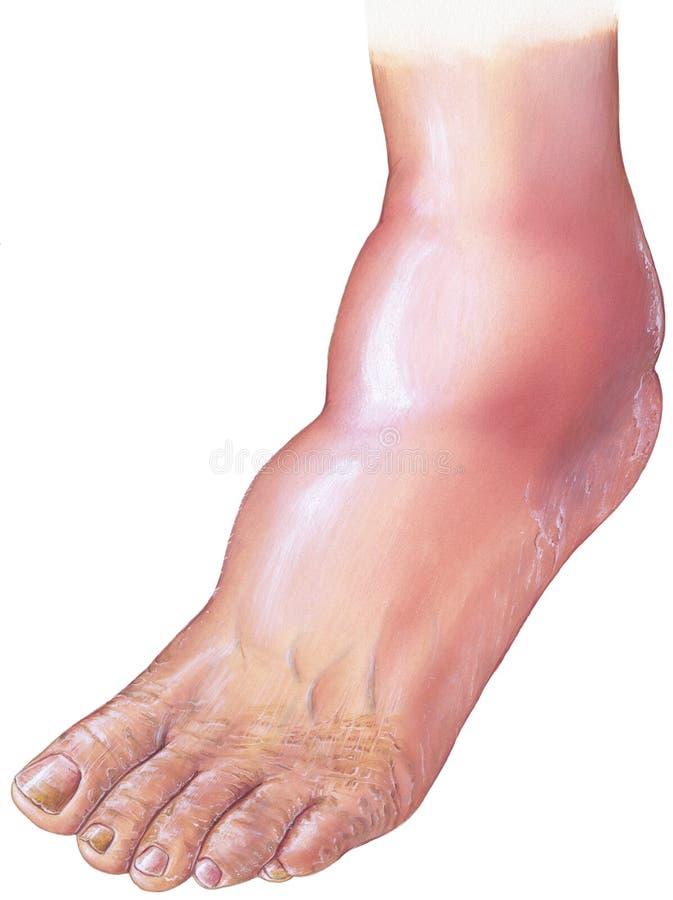 Diabete - malattia arteriosa e piede cadente diabetici illustrazione di stock