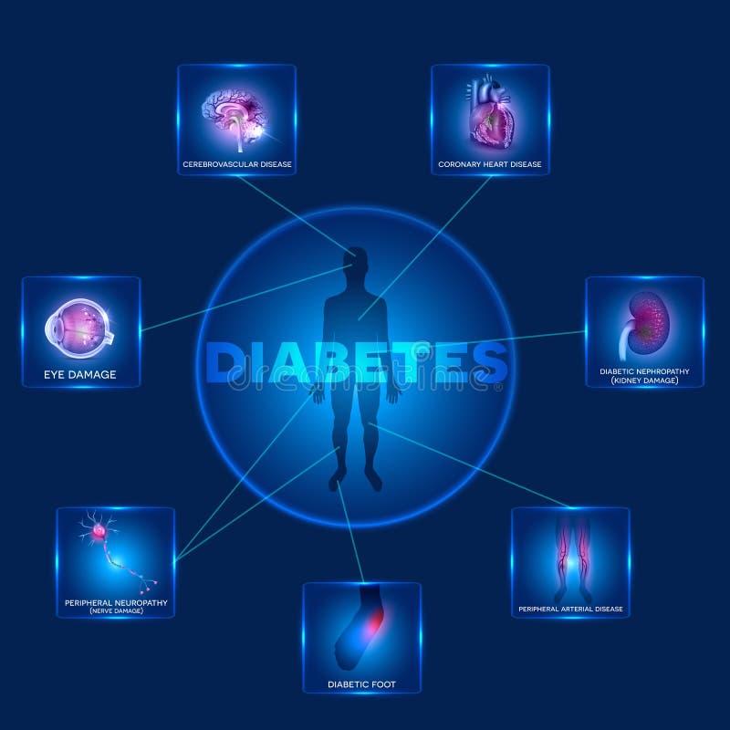diabetes stock de ilustración