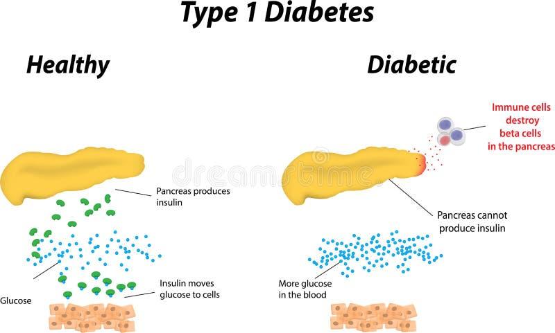 Diabetes del tipo 1 ilustración del vector