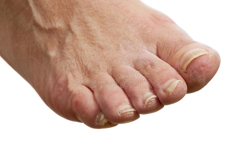 Isolated Diabetes Foot. Close up isolated photo of an unhealthy diabetes foot. She has dry skin and nails in bad condition royalty free stock image