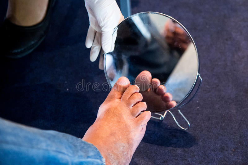 Diabetes foot royalty free stock photos