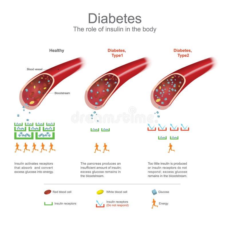 diabetes Gráfico de la información de la atención sanitaria Diseño del vector ilustración del vector