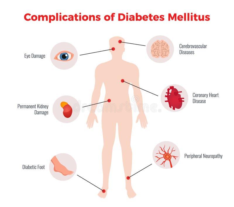 Diabetes-medizinisches Plakat stock abbildung