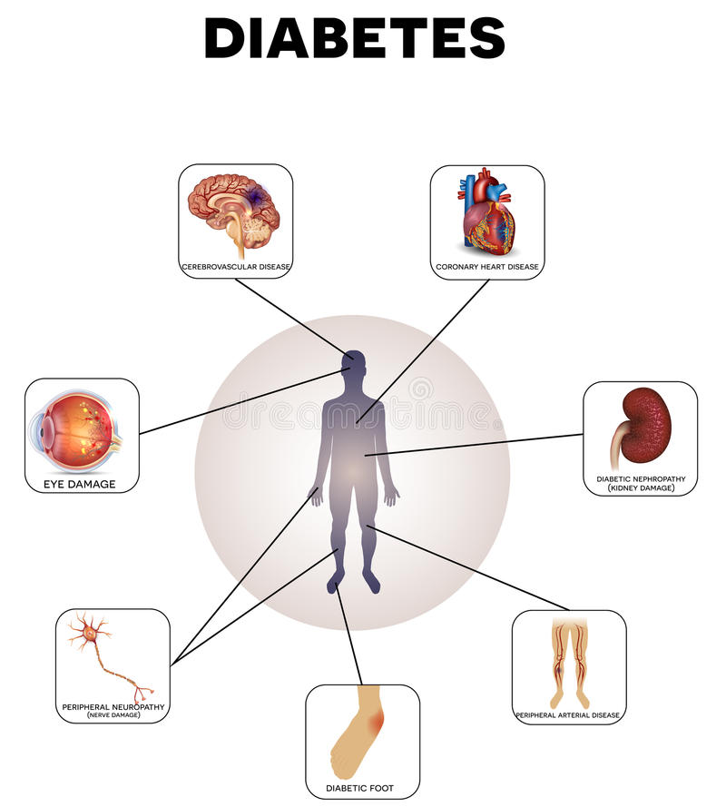 Diabetes Mellitus stock illustration