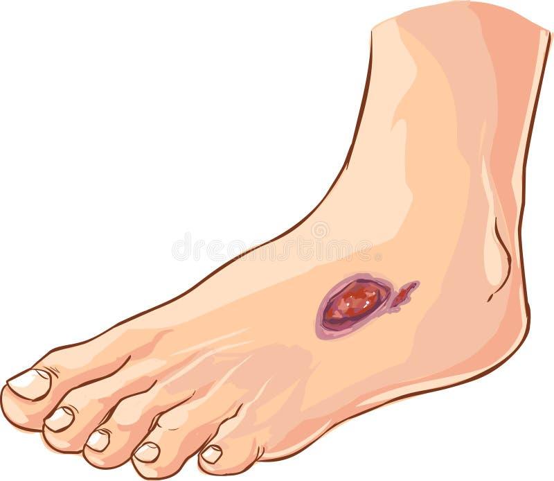 Diabetes voet stock afbeeldingen