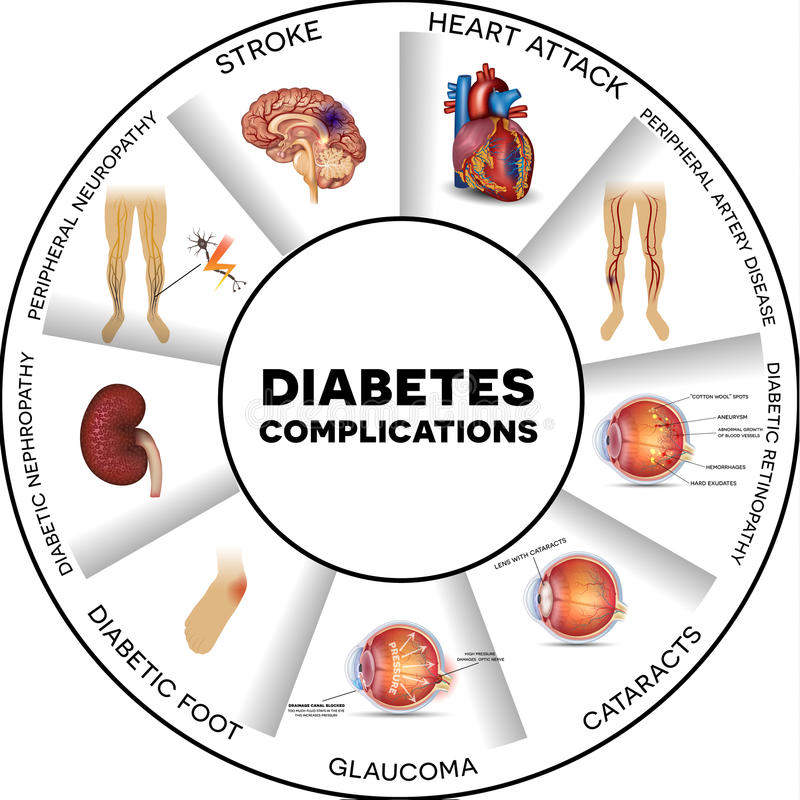 Diabetescomplicaties vector illustratie
