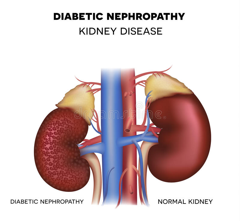 Diabetesnefropathie, nierziekte stock illustratie