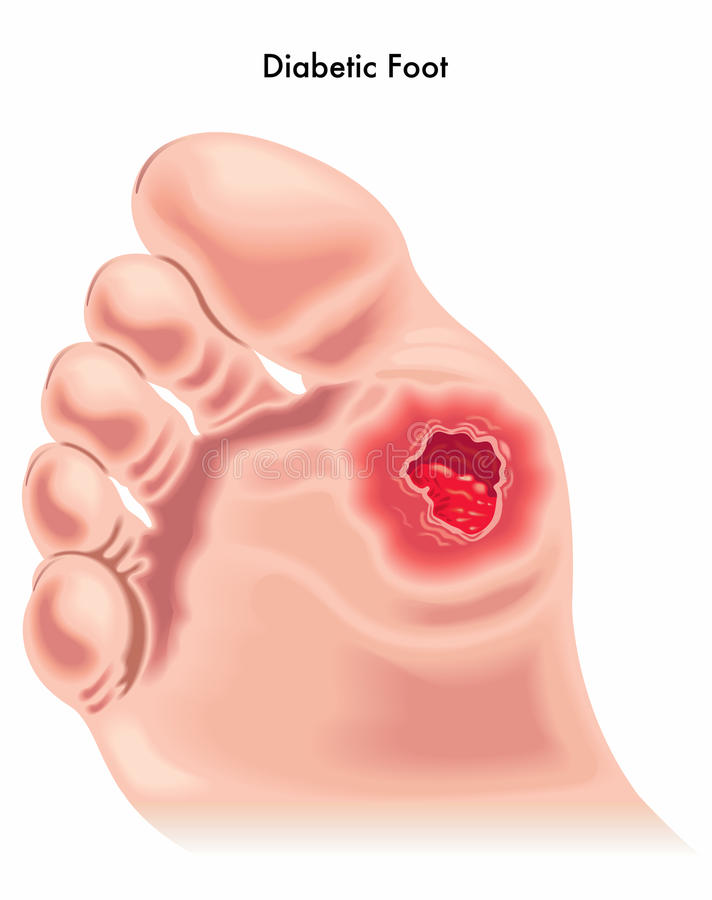 Diabetic foot royalty free illustration