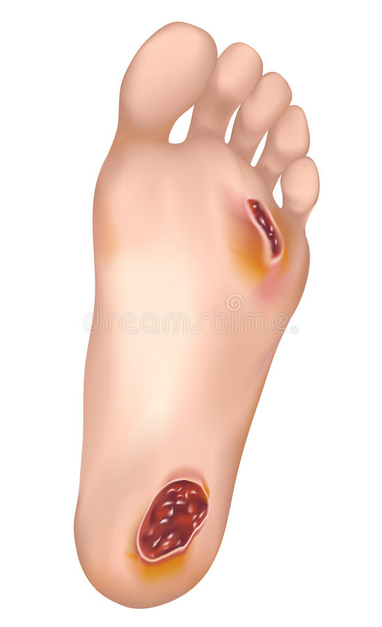 Free Diabetic Foot. Royalty Free Stock Photos - 24799898