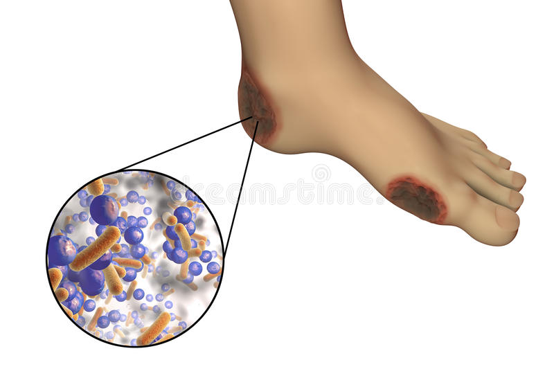 Diabetic foot infection with close-up view of bacteria royalty free illustration