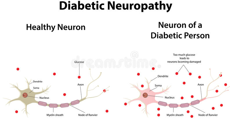 Diabetic Neuropathy vector illustration