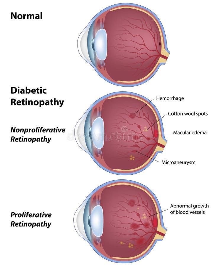 Diabetic retinopathy. Eye disease due to diabetes, eps8 stock illustration