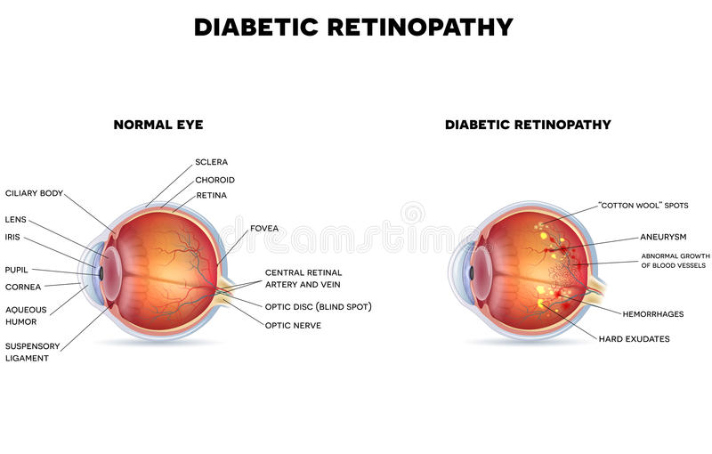 Diabetic retinopathy vector illustration