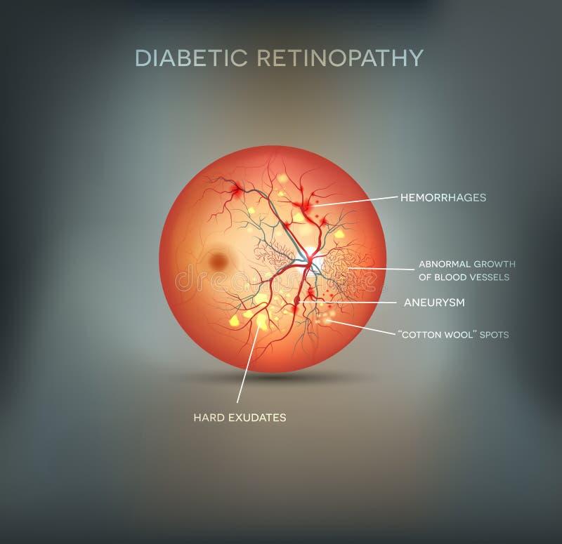 Diabetisk retinopathybakgrund stock illustrationer