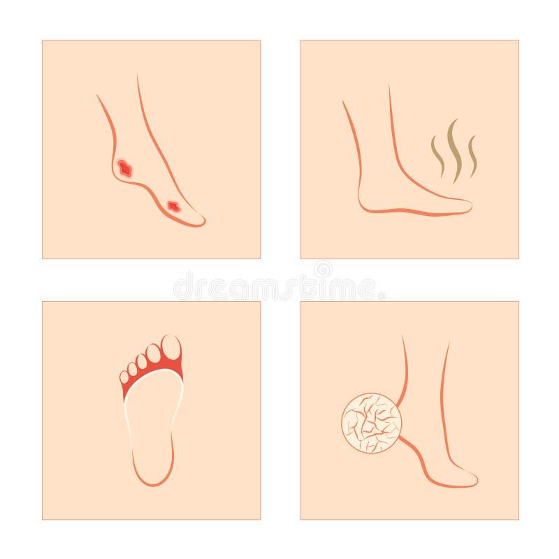 Diabetisk sår, sprucken häl, svamp infektion, stinky fot stock illustrationer