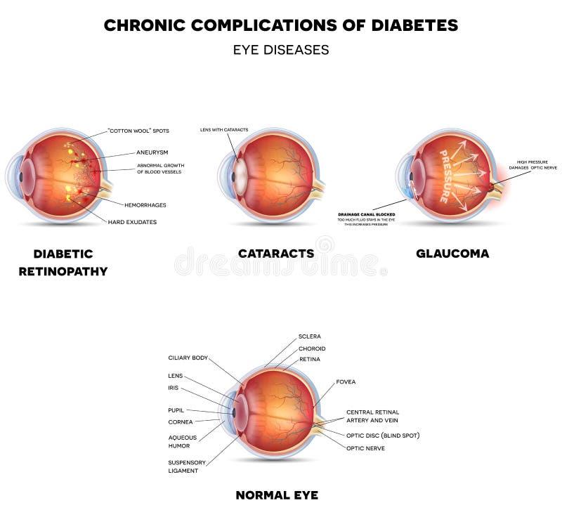Diabetiska ögonsjukdomar royaltyfri illustrationer