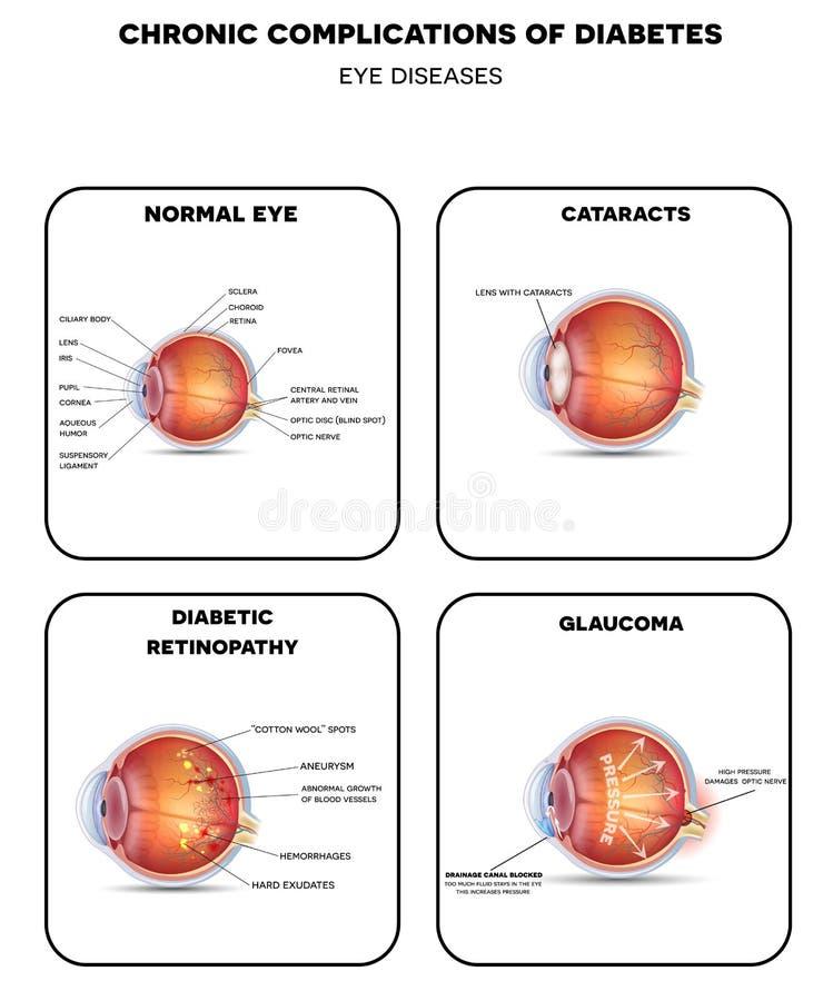 Diabetiskt diagram för ögonsjukdomar royaltyfri illustrationer