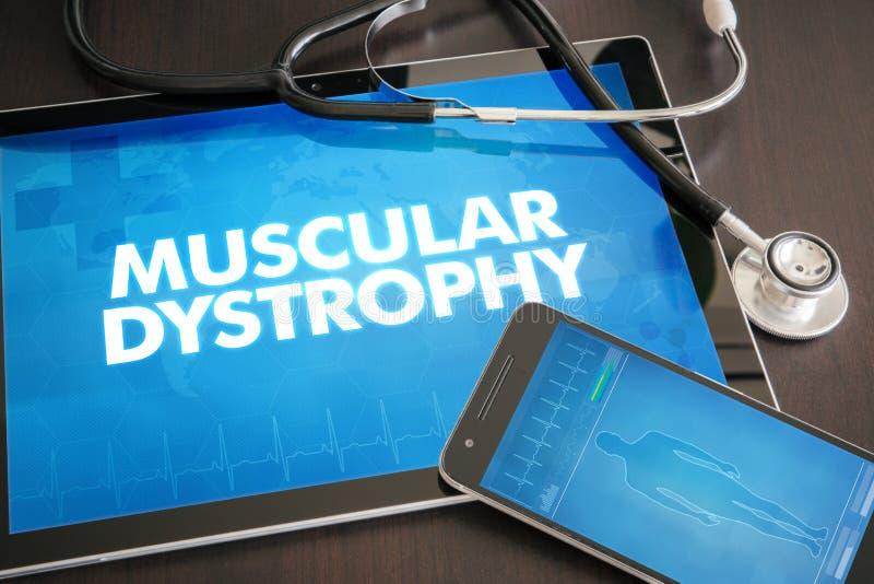 Diagnóstico da distrofia muscular (desordem neurológica) médico imagem de stock royalty free