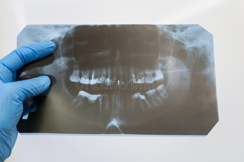 Diagnóstico das doenças dos dentes A mão do dentista guarda um orthopantomogram imagem de stock royalty free