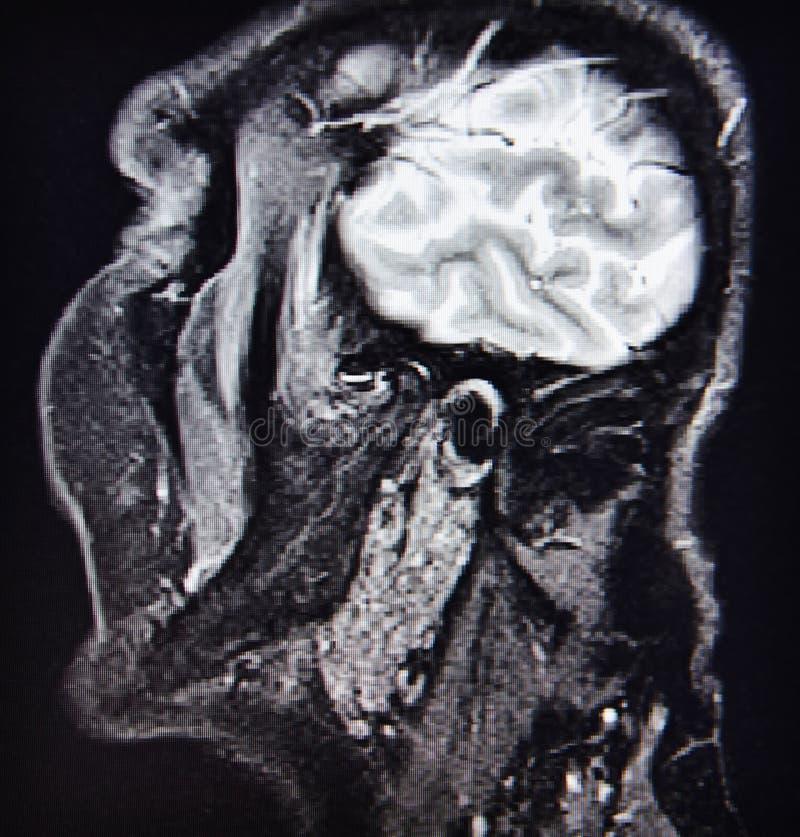 Diagnóstico do ct da patologia da junção de Temporamandibular imagem de stock