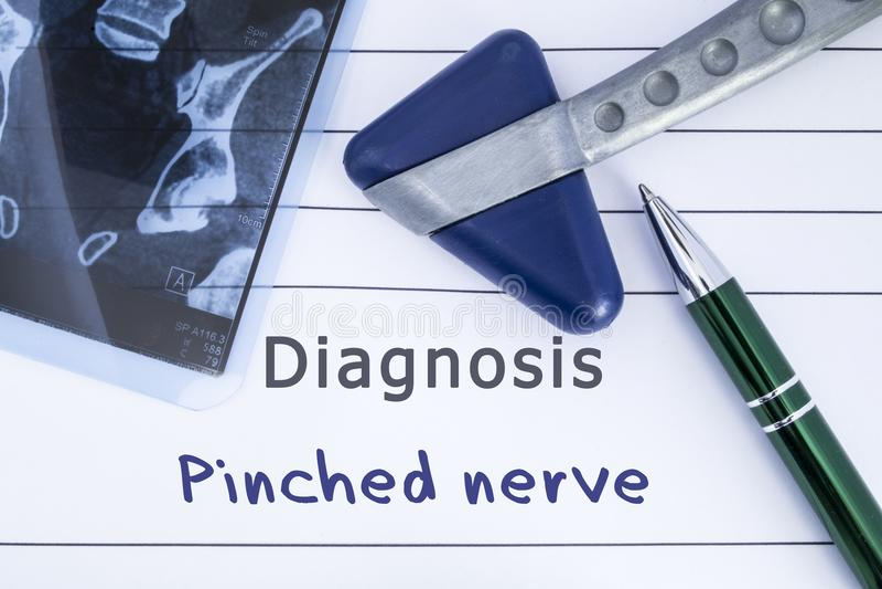 Diagnóstico do nervo comprimido História médica da saúde escrita com diagnóstico do nervo Pinched, da espinha da imagem de MRI e  fotos de stock