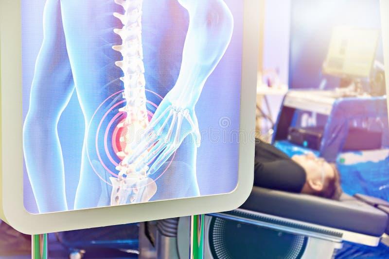 Diagnóstico médico moderno da espinha imagens de stock royalty free