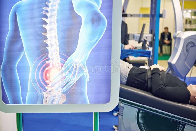 Diagnóstico médico moderno da espinha fotografia de stock