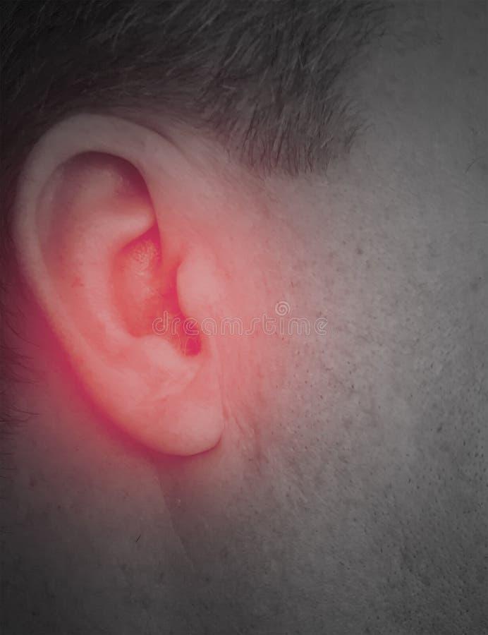 Diagnóstico masculino do sinal do sintoma do defeito da perda da audição ruidosamente fotos de stock royalty free