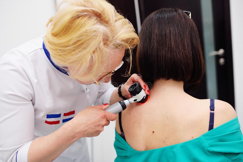 Diagnoinspectionsis da melanoma O doutor examina a toupeira paciente do ` s imagens de stock