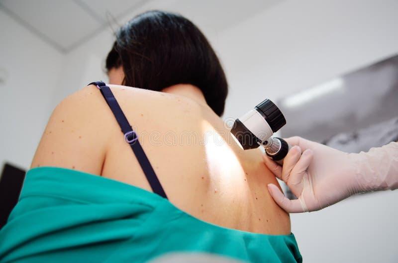 Diagnoinspectionsis del melanoma el doctor examina el topo paciente del ` s fotos de archivo